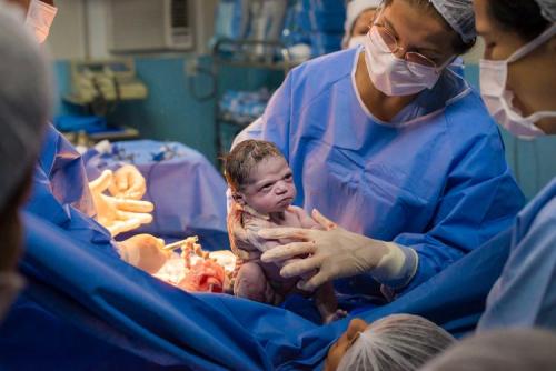Lucu, Tak Menangis Saat Dilahirkan, Bayi Ini Malah Tunjukkan Raut Wajah Cemberut, Begini Penampakannya