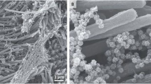 Peneliti Dapatkan Gambar Virus Corona Serang Sel Pernapasan Manusia, Begini Penampakannya