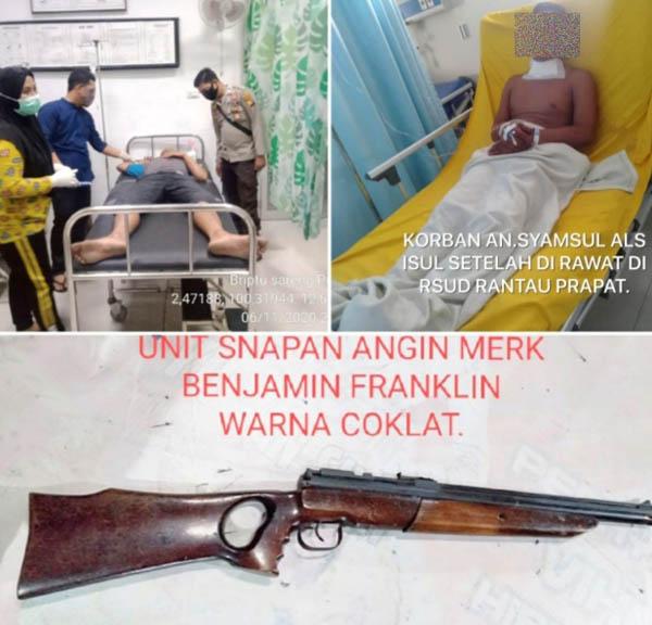 Abangnya Diperas, Sang Adik Tembak Pelaku, Peluru Senapan Angin Meledak di Leher
