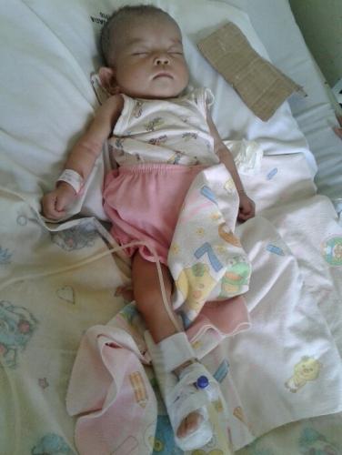 Menderita Gizi Buruk dan Bronkopneumonia, Bayi yang Ditinggal Ayahnya Sejak Lahir Ini Tengah Terbaring Lemah di RSUD Puri Husada
