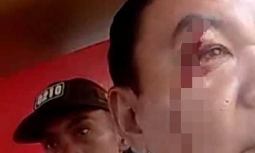 Aparat TNI-Polri Bentrok di Tapanuli Utara, 7 Orang Terluka, Begini Kronologisnya